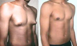 Фото после гинекомастии