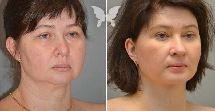 До и после платизмопластики
