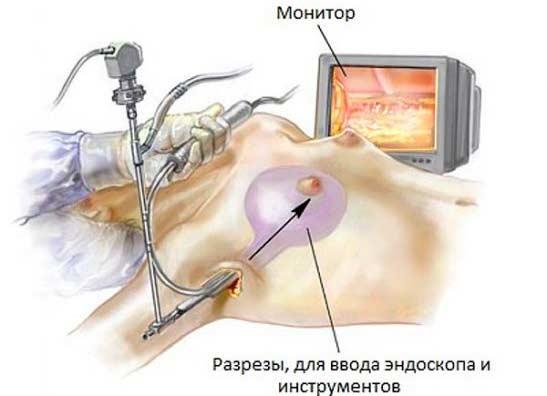 Подтяжка грудных желез без имплантов: виды операций и цены