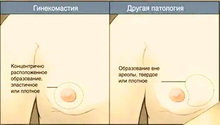 Как выявить гинекомастию