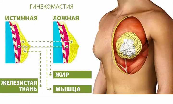 Схема образования гинекомастии
