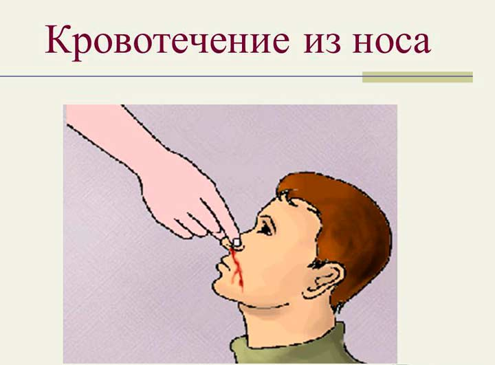 Жалобы при перфорации носовой перегородки