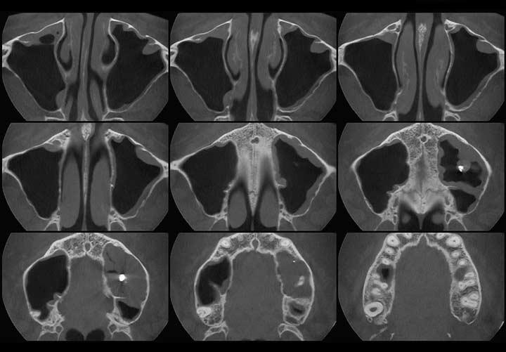 Компьютерная томография носовых пазух
