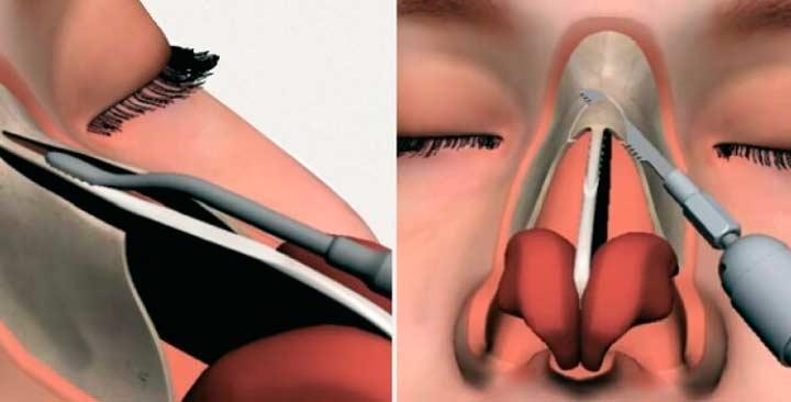 Эндоскопическая лазерная септопластика