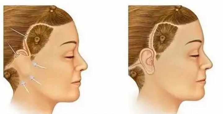 Операция по подтяжке лица - мини