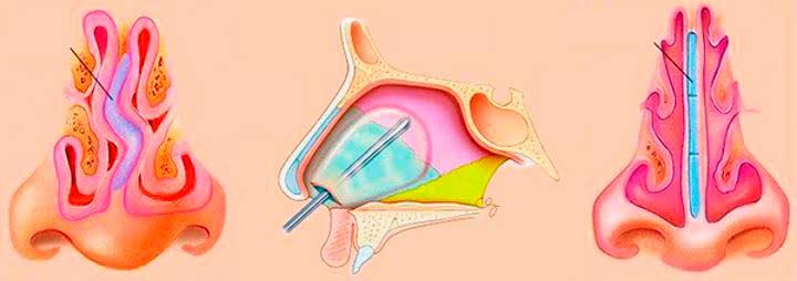 Эндоскопическая септопластика
