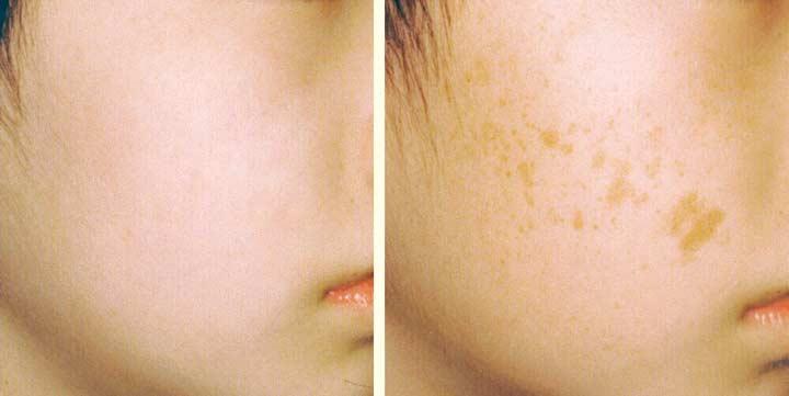 Пигментация кожи после лазерной терапии