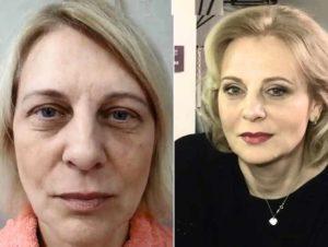 Лицо до и после подтяжки