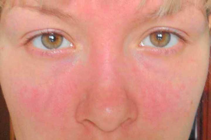 Покраснение кожи после лазерной терапии