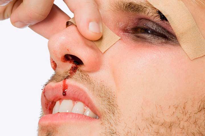 Травматический фактор искривления носовой перегородки