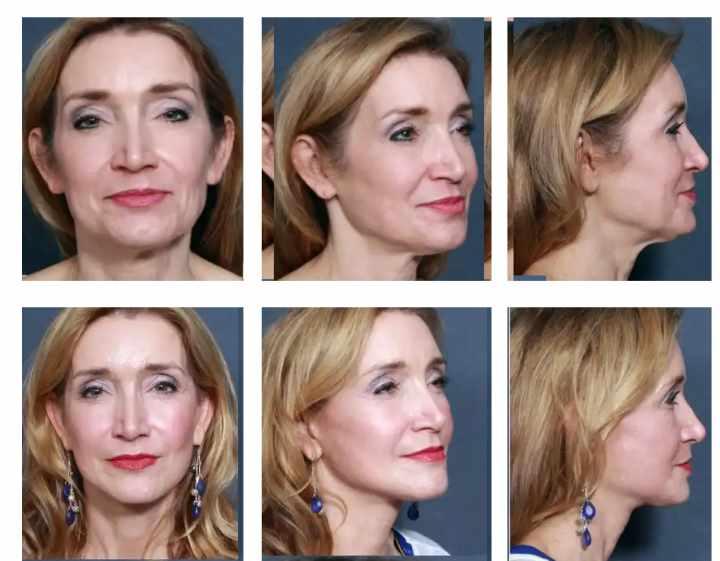 До и после минилифтинга. 6 фото