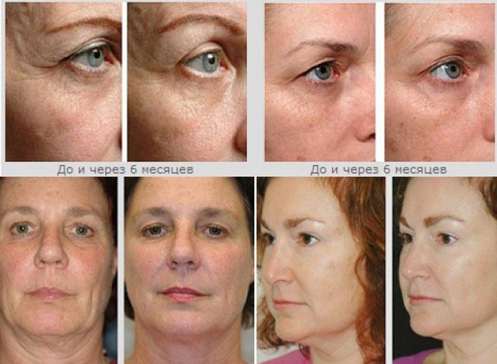 Результаты лазерной терапии