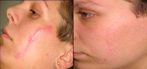 Рубцы и шрамы после лазерной терапии