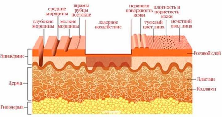 Схема действия лазера