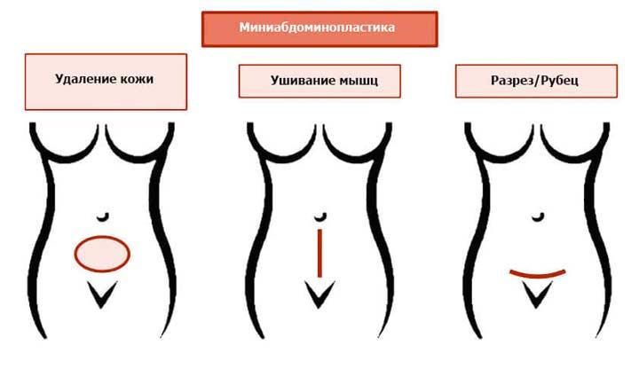 Схема миниабдоминопластики