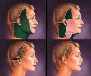 Операция по подтяжке лица - смас