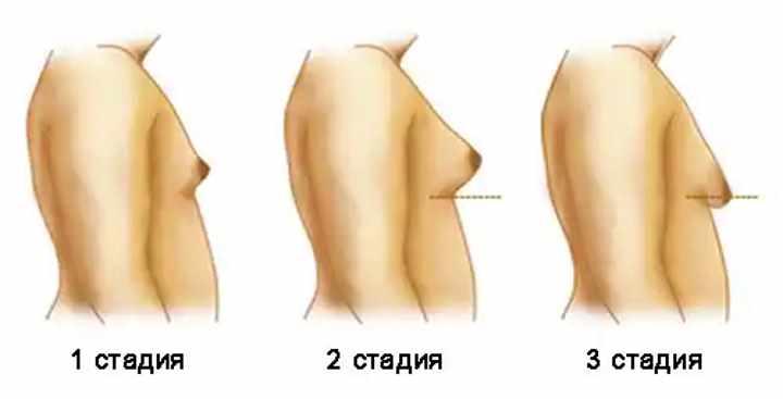 Рисунок стадий гинекомастии