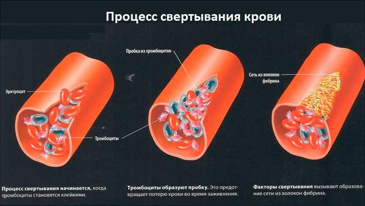 Если нарушена свертываемость крови