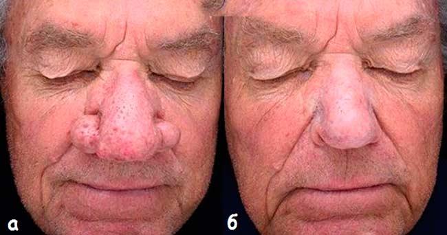 Заболевания, провоцирующие перфорацию носовой перегородки