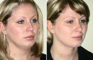 Фото до и после изменения второго подбородка