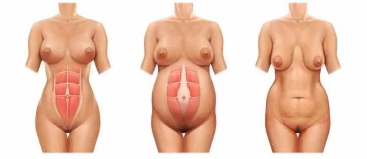 Строение мышц после растяжек живота