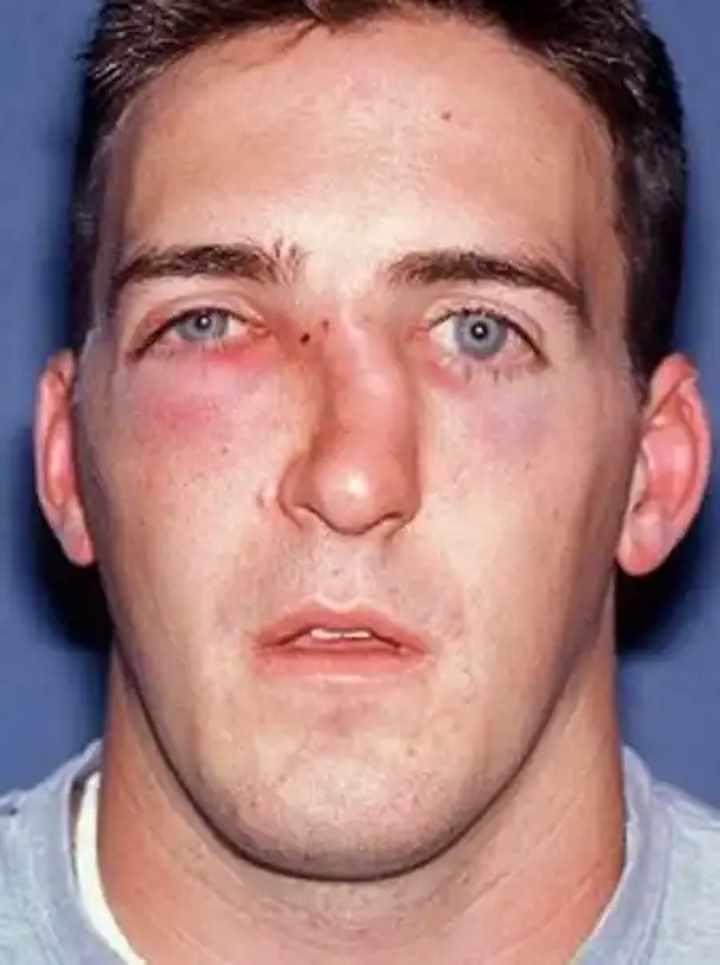 Последствия перелома носа