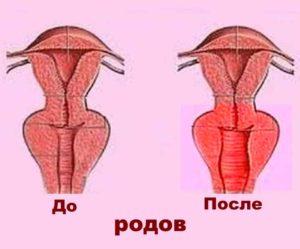 Как происходит растяжение вагины