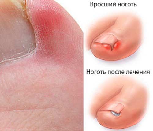 После лечения ногтя