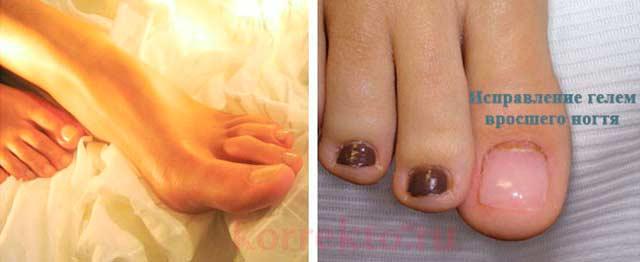 Покрытия ногтей гелем