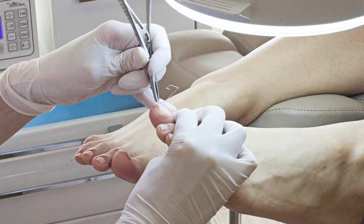 Лечение ногтя хирургическим способом