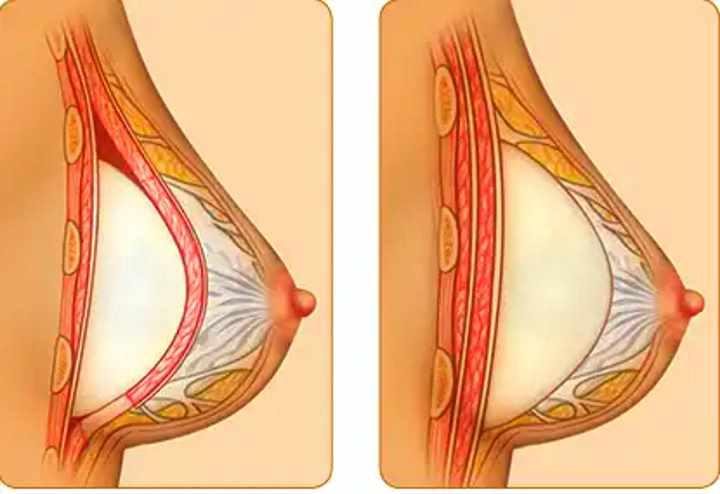 Расположение имплантов в груди