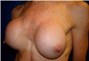 Последствия неудачной пластики груди