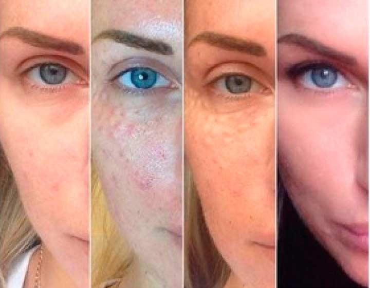 Выздоровление кожи