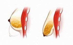 Изменения груди в период беременности и лактации