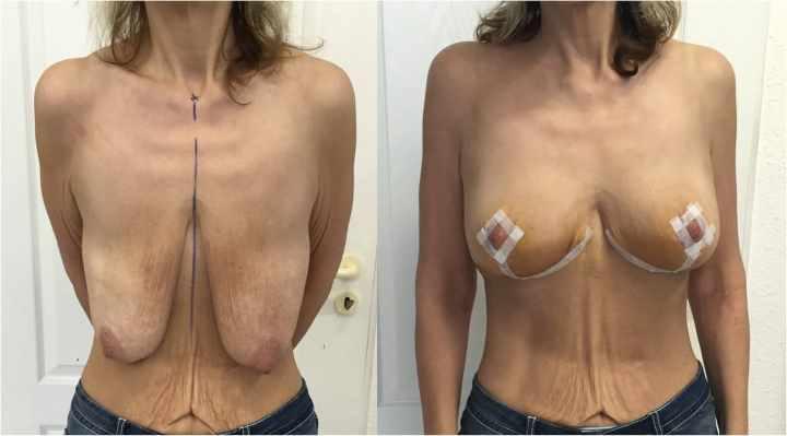До и после операции мастопексии