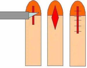 Схема проведения операции на половом члене
