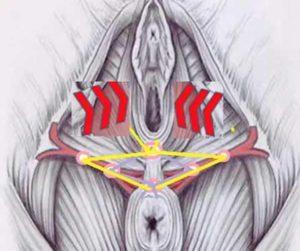 Средства для уменьшения вагины - подтяжка