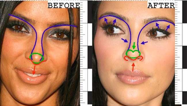 Пластика носа Ким Кардашьян