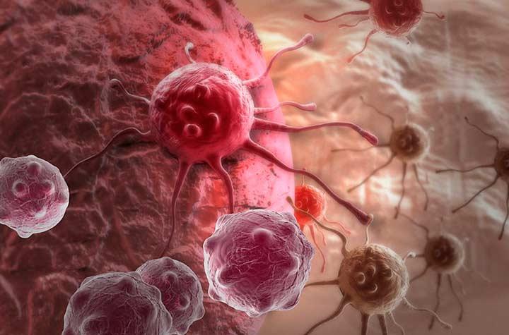 Гипертрихоз может привести к онкозаболеваниям