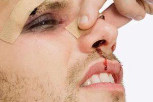 Внешний вид перелома носа