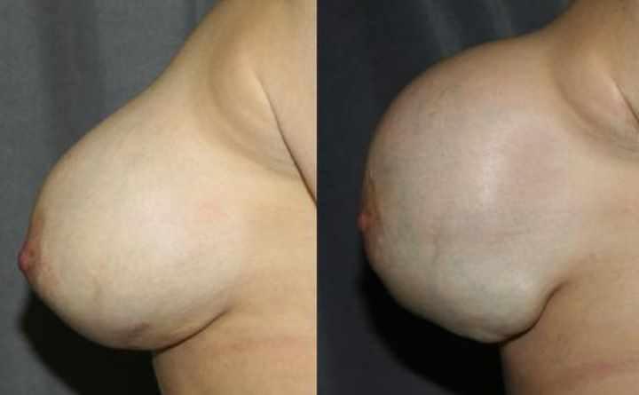 Осложнения операции на грудь