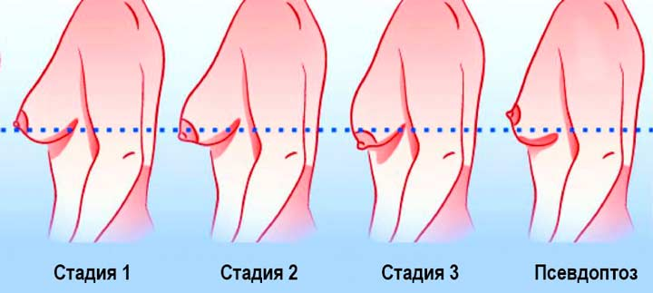 Стадии птоза груди