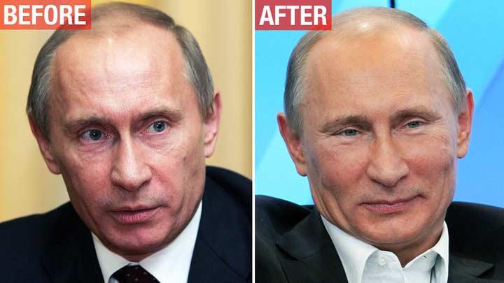 Путин В.В. и ботокс