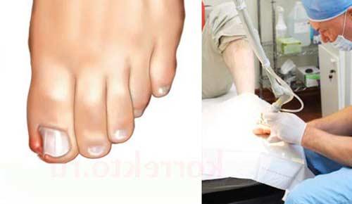 Радиоволновое лечение ногтей