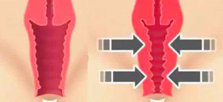 Схема уменьшения вагины