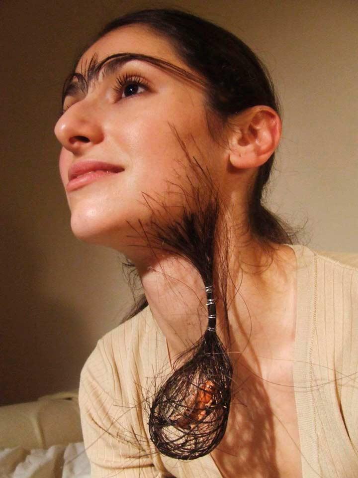 Виды гипертрихоза в зависимости от причин
