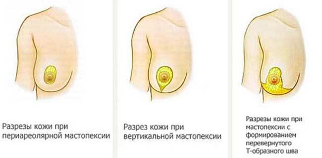 Разновидности разрезов при мастопексии