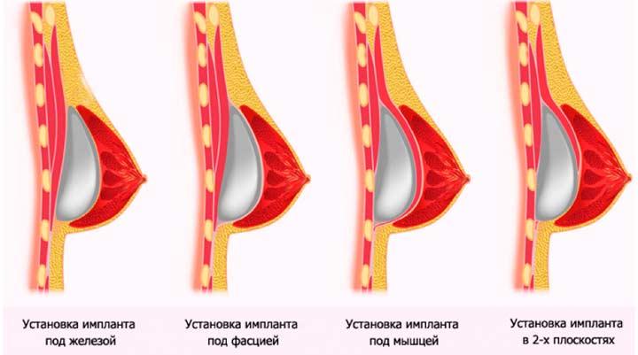 Методы установки имплантов в грудь