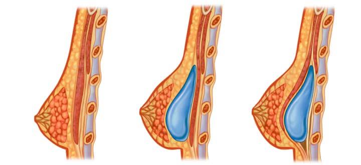 Эндопротезирование молочных желез для увеличения груди