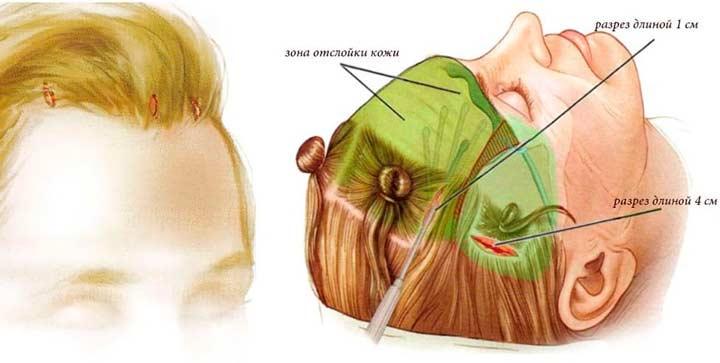 Эндоскопическая подтяжка лба на лице